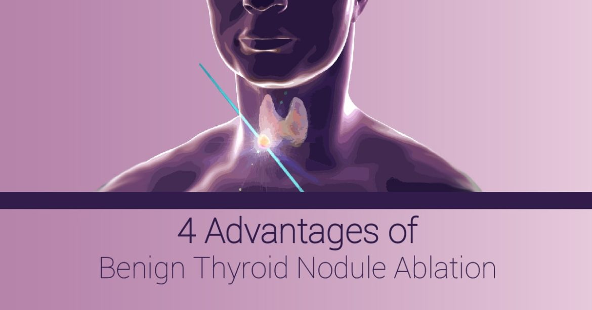 """Header image for article reading """"4 Advantages of Thyroid Nodule Ablation"""""""