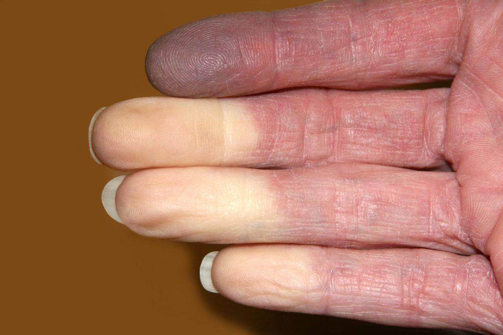 A photo of fingers turning white from a Raynaud's Attack